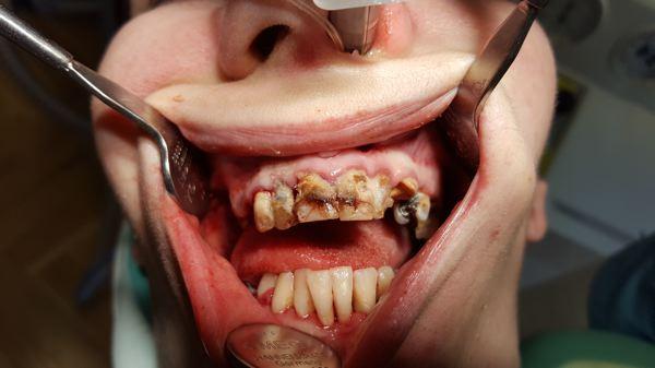 bilder zahnersatz mundhygiene implantate zahnarzt. Black Bedroom Furniture Sets. Home Design Ideas